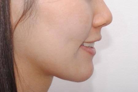 做上颚整形护理方法