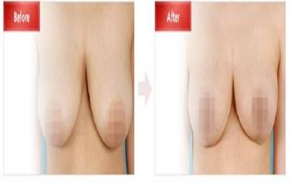 手术缩小巨乳属于哪种类型?