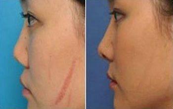 做疤痕增生修复手术时间是多久?
