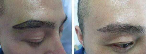 眉毛种植不适用人群有哪些?