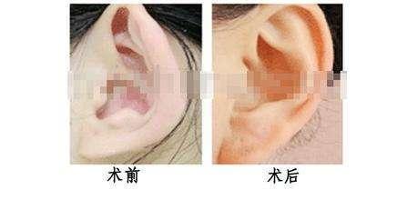 做杯狀耳矯正有副作用嗎