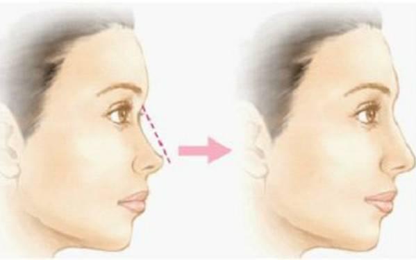 做假体垫鼻基底有副作用吗