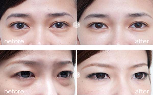 做超声法去眼袋有副作用吗