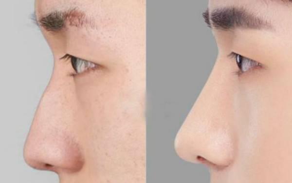 做鼻尖缺损修复有副作用吗