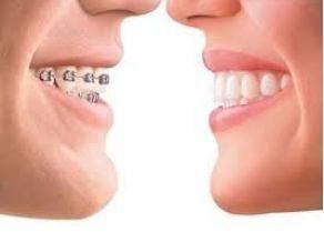 做牙齿拥挤有副作用吗