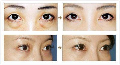 做超声法去眼袋什么年龄做比较合适