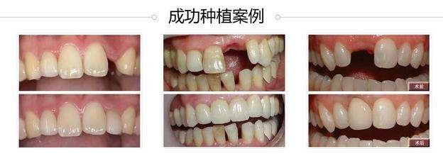 广州种植牙价格:广州种植牙价格表