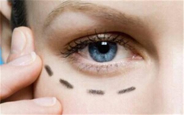 眼部脂肪粒怎么形成的