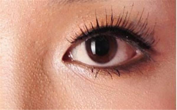 怎么去眼部脂肪粒