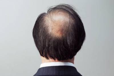 自体毛发移植需要多少钱