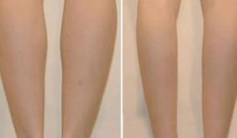 激光溶脂瘦小腿需要多少钱