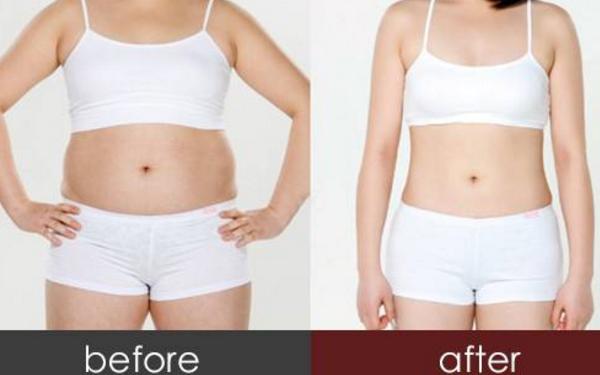 射频溶脂瘦肚子多少钱