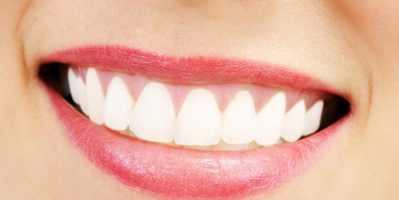 杭州牙齿整形最好的医院是哪一家