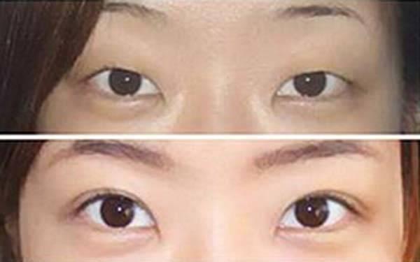北京整形医院哪家做双眼皮修复好?