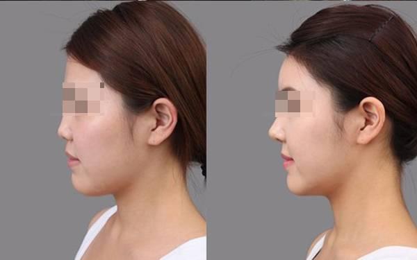 鼻翼整形手术后护理方法