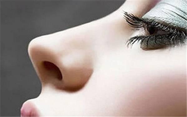 假体隆鼻有哪些优缺点呢