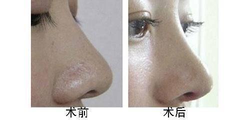 玻尿酸隆鼻效果能保持多久呢