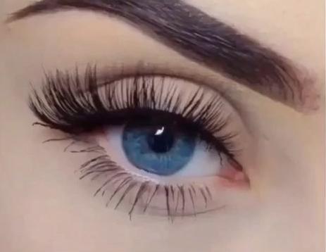 全切双眼皮术后注意事项有哪些?