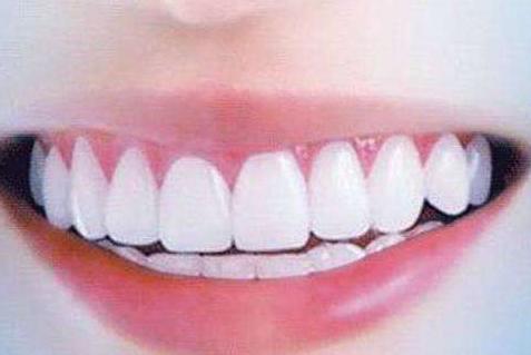 传统烤瓷牙修复与现代种植牙技术对比
