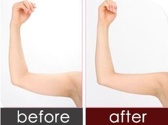 怎样才能快速瘦手臂