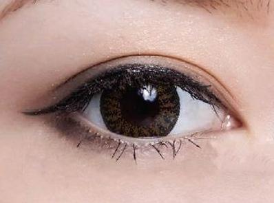 怎样可以迅速拥有双眼皮?