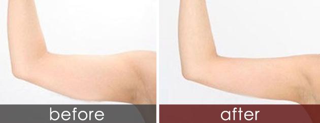 怎样可以瘦手臂
