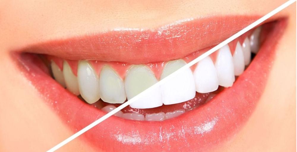 冷光牙齿美白的适宜人群