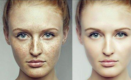 脸上出现色斑怎么办 祛斑方法做法