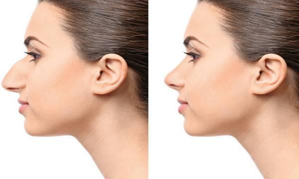 鼻尖整形注意事项是什么