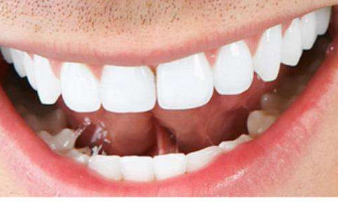 超声波洁牙的危害