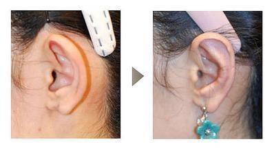 附耳切除手术的价格