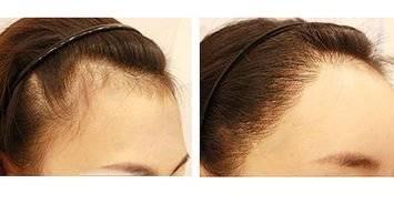发际线不满意想做激光脱毛需要多少钱啊