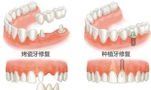 种植牙齿的效果好吗