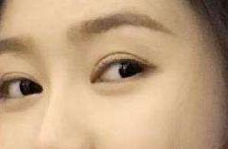 双眼皮看起来眼睛大吗