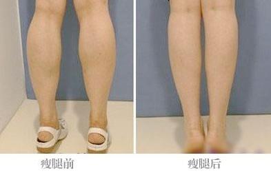 女生瘦小腿的最快方法
