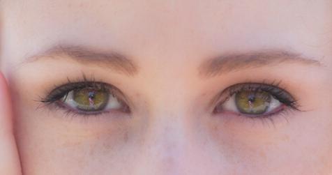 眼部抽脂后多久恢复