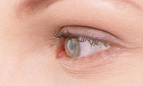双眼皮手术后增生怎么办