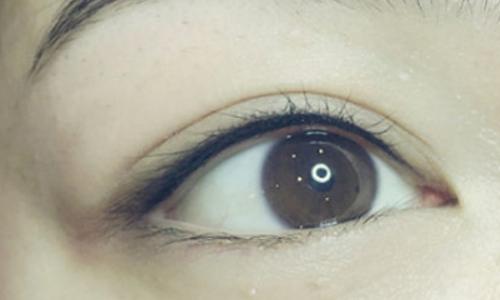 做一个双眼皮需要多少钱