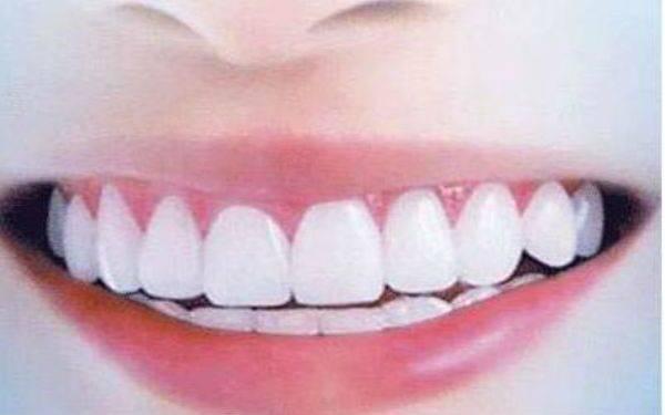种植牙的优势与危害性有哪些