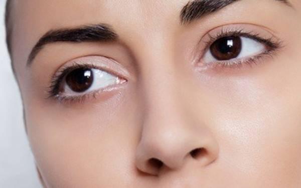 怎样才需做开眼角手术