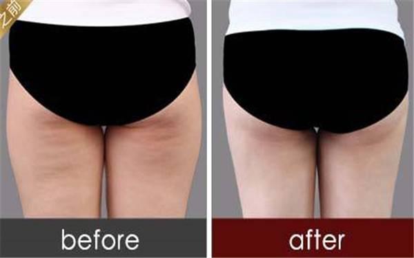 怎样才能让臀部吸脂更加安全