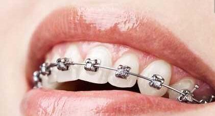 做种植牙前后的注意事项有哪些