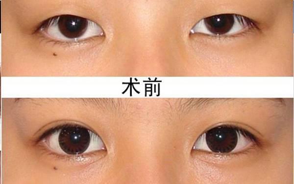 眼角有细纹和眼袋怎么消除