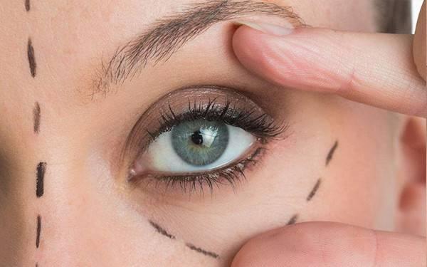 眼袋重做吸脂去眼袋效果怎么样
