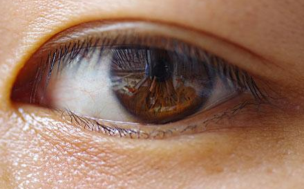 双眼皮手术时间要多久