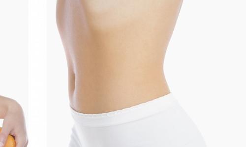 产后妊娠纹祛除需要多少钱