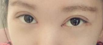 热玛吉眼部除皱