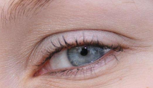 北京做埋线法双眼皮多久可以痊愈