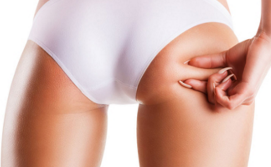 自体脂肪丰臀是永久的吗
