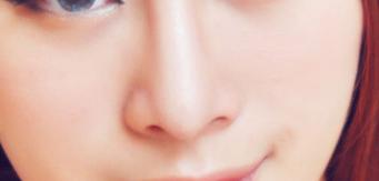 鼻头鼻翼缩小多长时间恢复